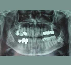 01-caso-tumore-alla-mandibola