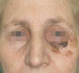 01-caso-tumore-alla-pelle-melanoma