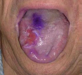 01-caso-tumore-della-lingua