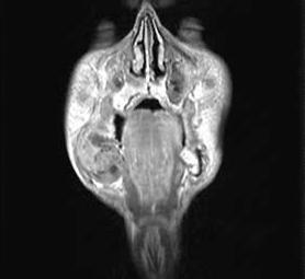 012-caso-tumore-alla-mandibola