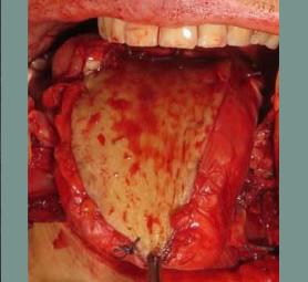 012-caso-tumore-della-lingua