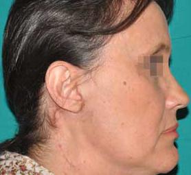 013-caso-tumore-della-parotide