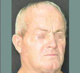 015-caso-tumore-cutaneo-basalioma