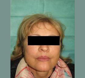 015-caso-tumore-della-lingua