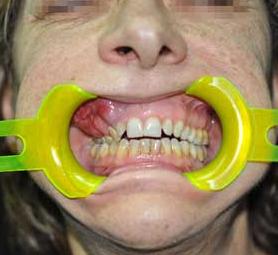 017-caso-tumore-alla-mandibola