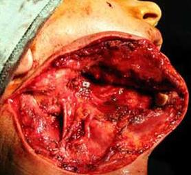 02-caso-tumore-alla-mandibola