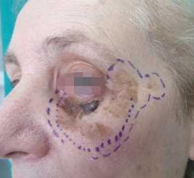 02-caso-tumore-alla-pelle-melanoma