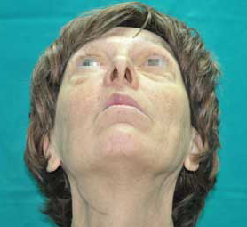 022-caso-tumore-alla-mandibola