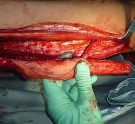 031-caso-tumore-alla-mandibola