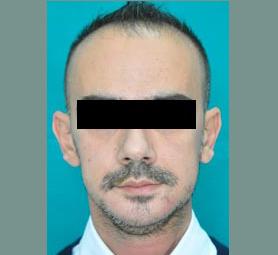 034-caso-tumore-alla-mandibola