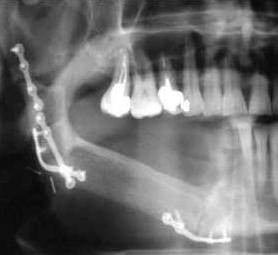 04-caso-tumore-alla-mandibola
