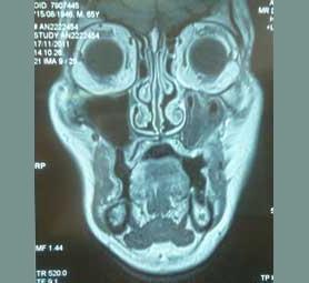 04-caso-tumore-della-lingua