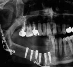 05-caso-tumore-alla-mandibola