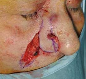 05-caso-tumore-cutaneo-basalioma