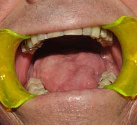 05-caso-tumore-della-lingua