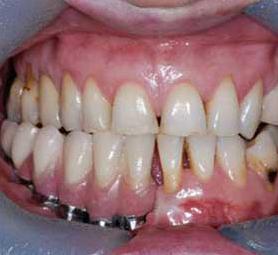 06-caso-tumore-alla-mandibola