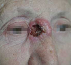 06-caso-tumore-cellule-squamose