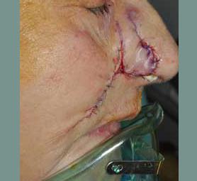 06-caso-tumore-cutaneo-basalioma