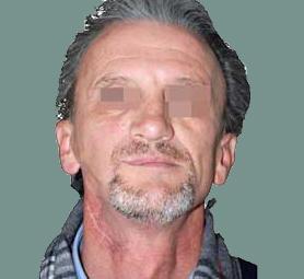 07-caso-tumore-alla-mandibola