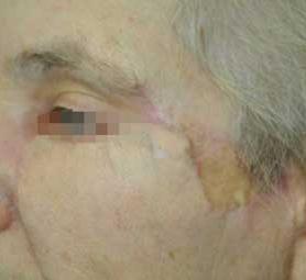 07-caso-tumore-alla-pelle-melanoma