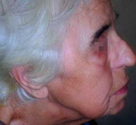 07-caso-tumore-cutaneo-basalioma