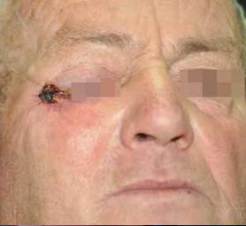08-caso-tumore-cutaneo-basalioma
