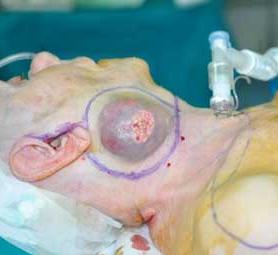 09-caso-tumore-cellule-squamose